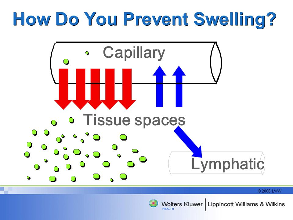 How Do You Prevent Swelling