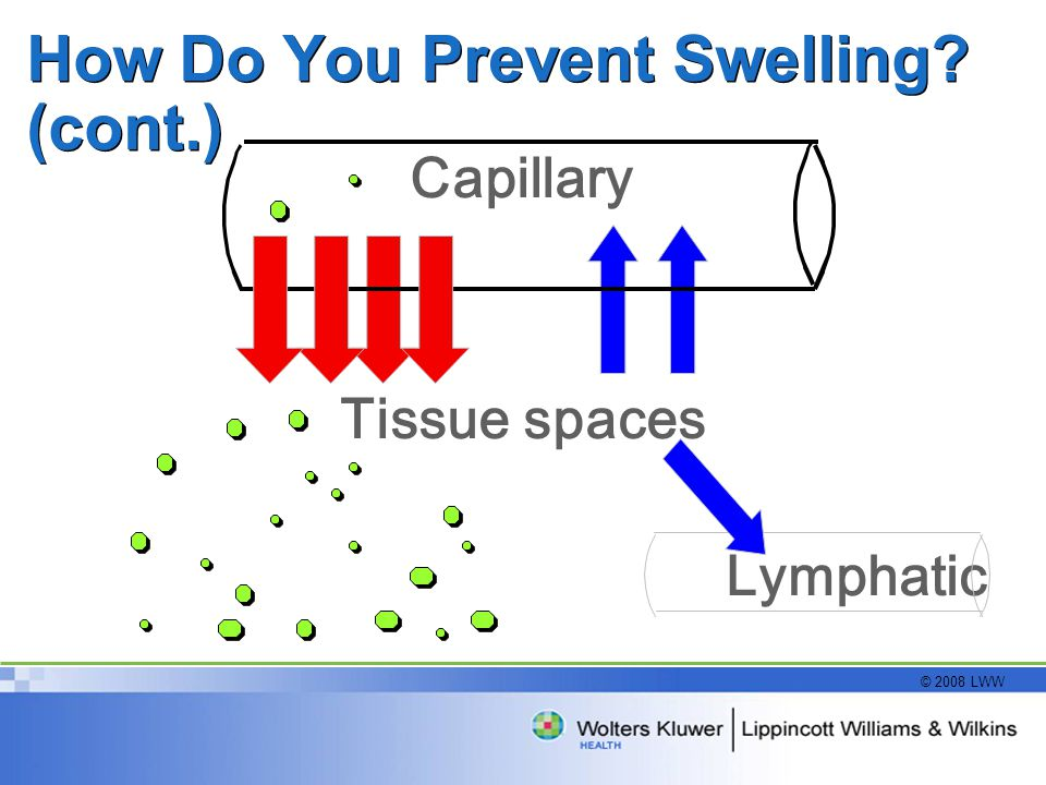 How Do You Prevent Swelling (cont.)