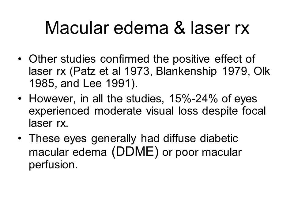 Macular edema & laser rx