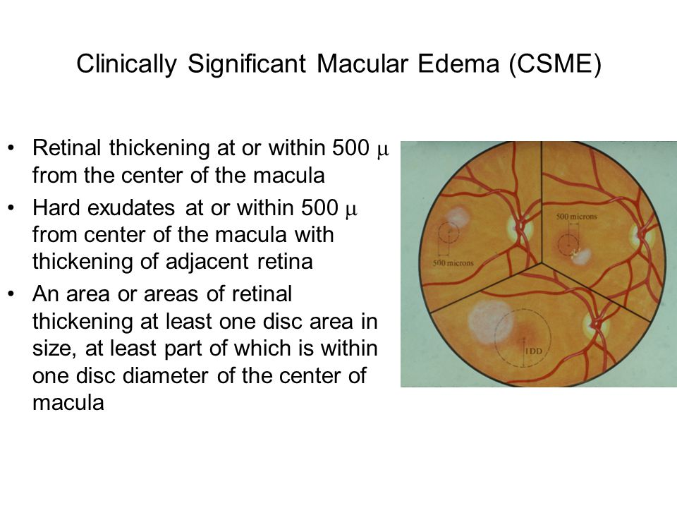 Clinically Significant Macular Edema (CSME)