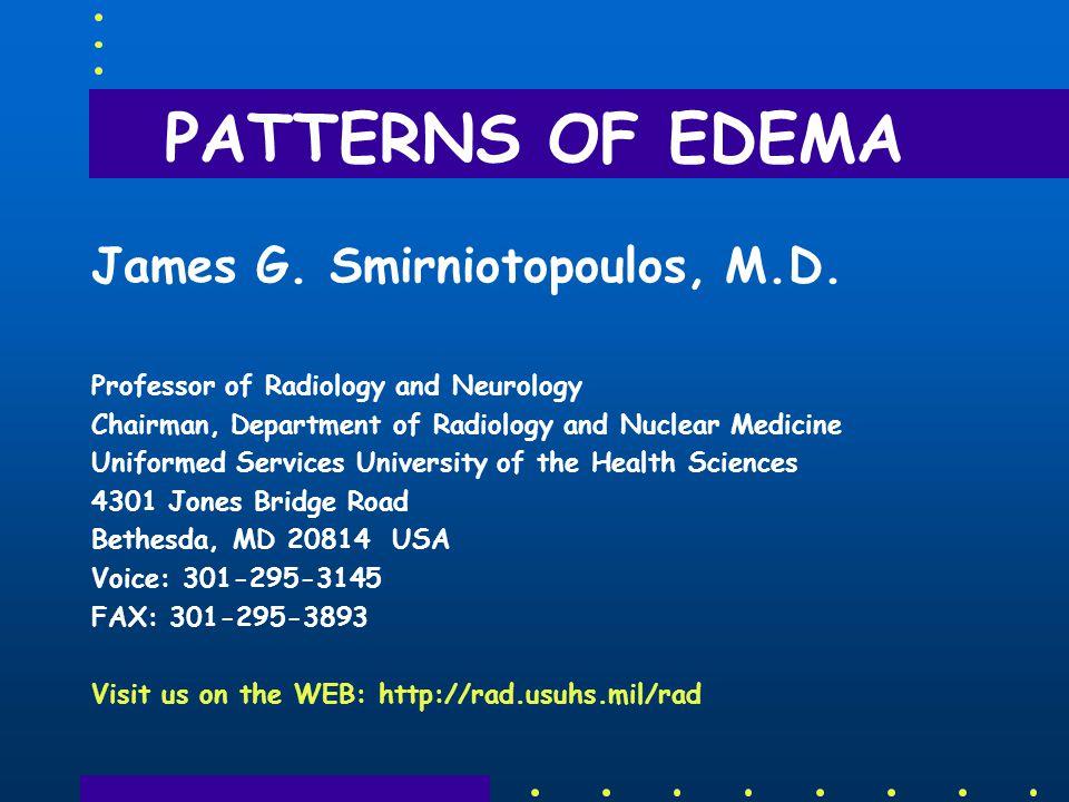 PATTERNS OF EDEMA James G. Smirniotopoulos, M.D.