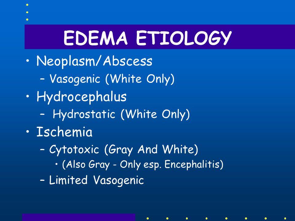 EDEMA ETIOLOGY Neoplasm/Abscess Hydrocephalus Ischemia