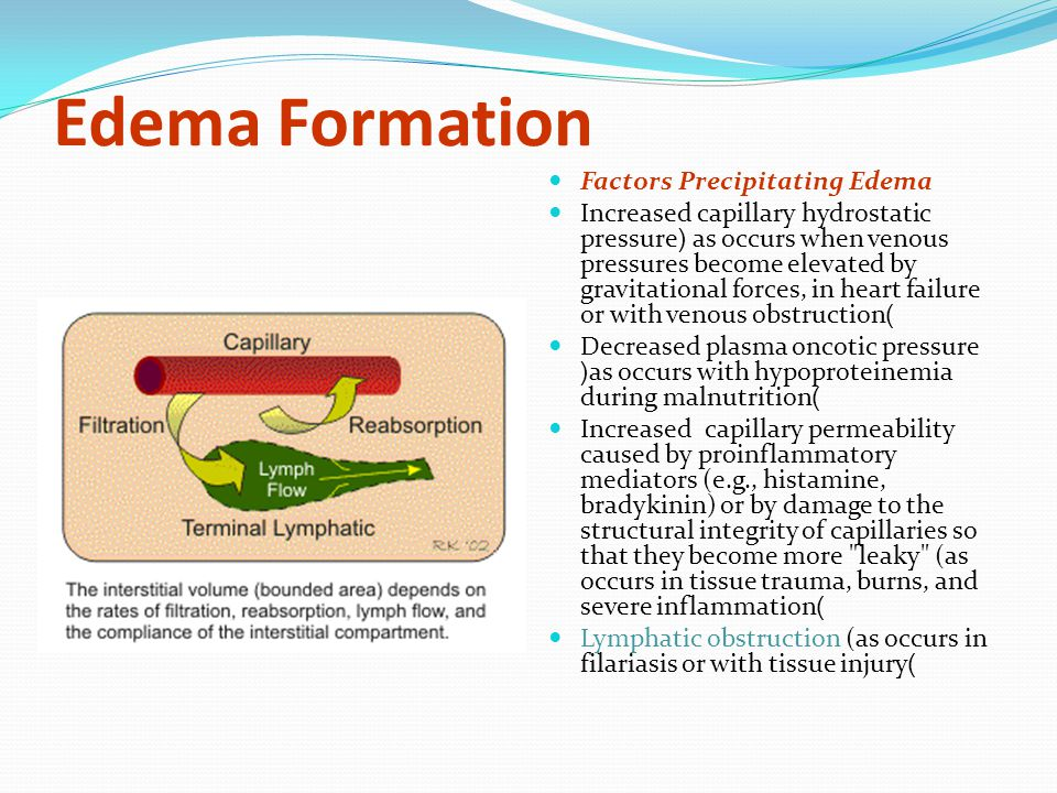 Edema Formation Factors Precipitating Edema