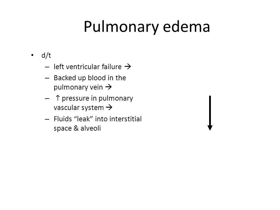 Pulmonary edema d/t left ventricular failure 