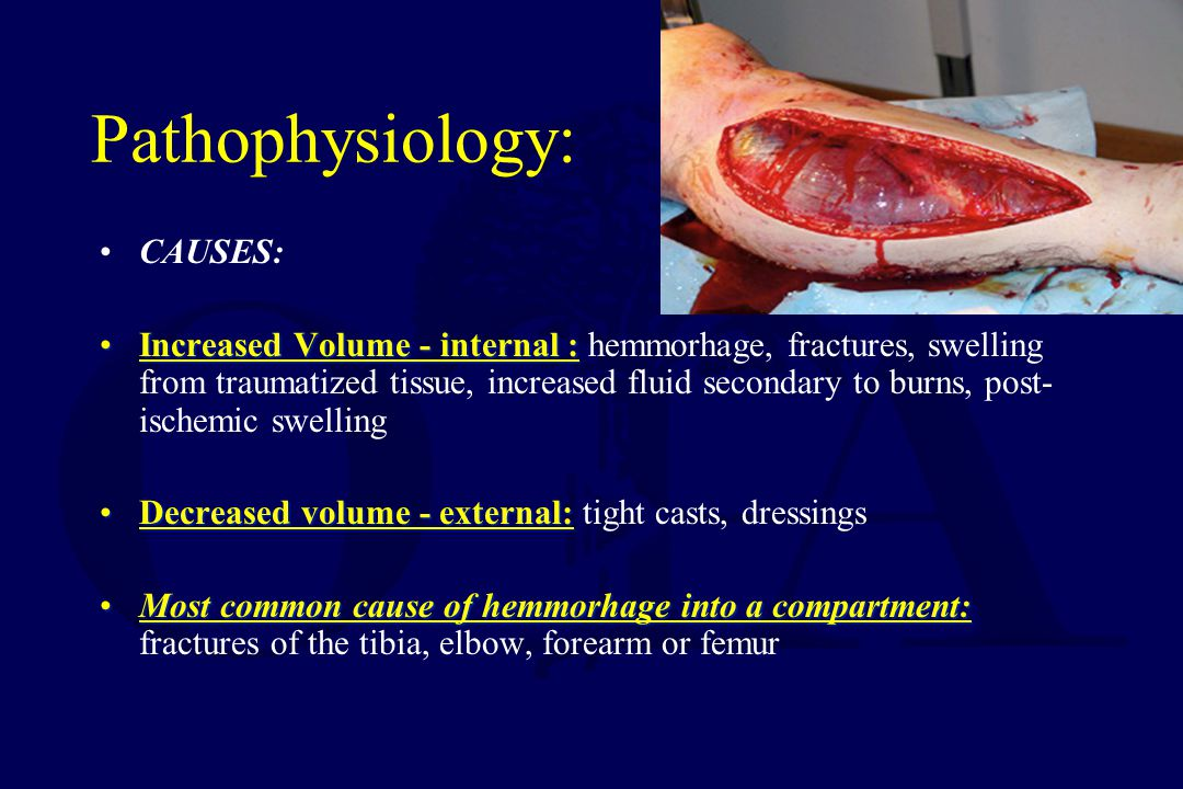 Pathophysiology: CAUSES: