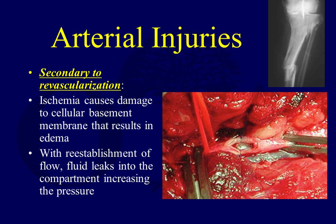 Arterial Injuries Secondary to revascularization: