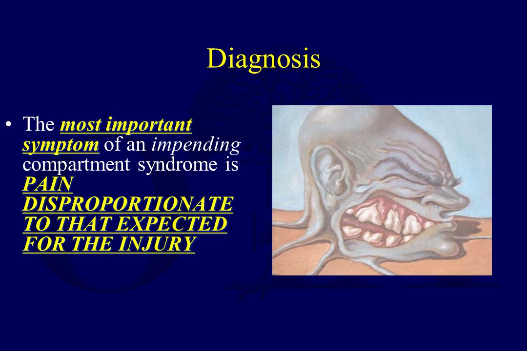 Diagnosis The most important symptom of an impending compartment syndrome is PAIN DISPROPORTIONATE TO THAT EXPECTED FOR THE INJURY.