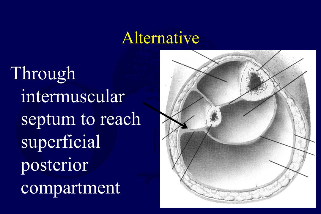 Alternative Through intermuscular septum to reach superficial posterior compartment