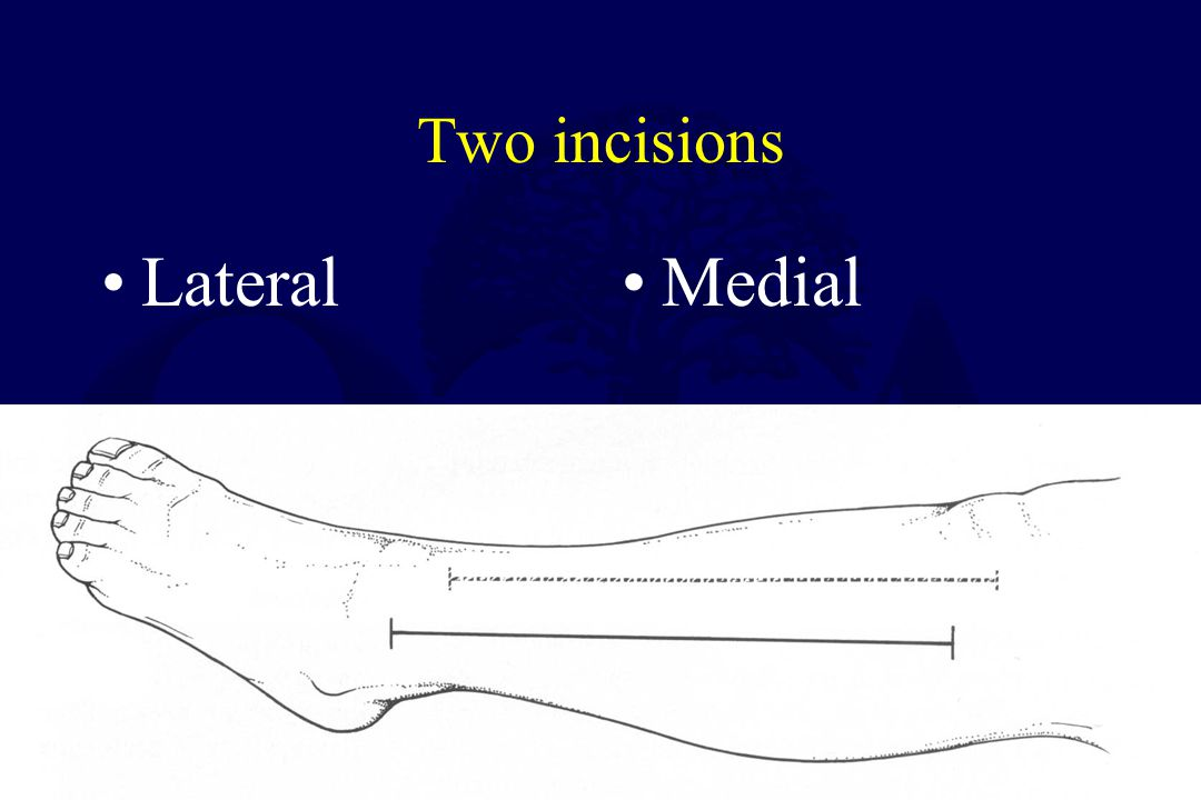 Two incisions Lateral Medial