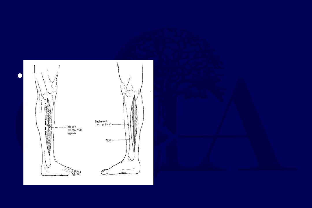 Medial Soleus bridge Saphenous