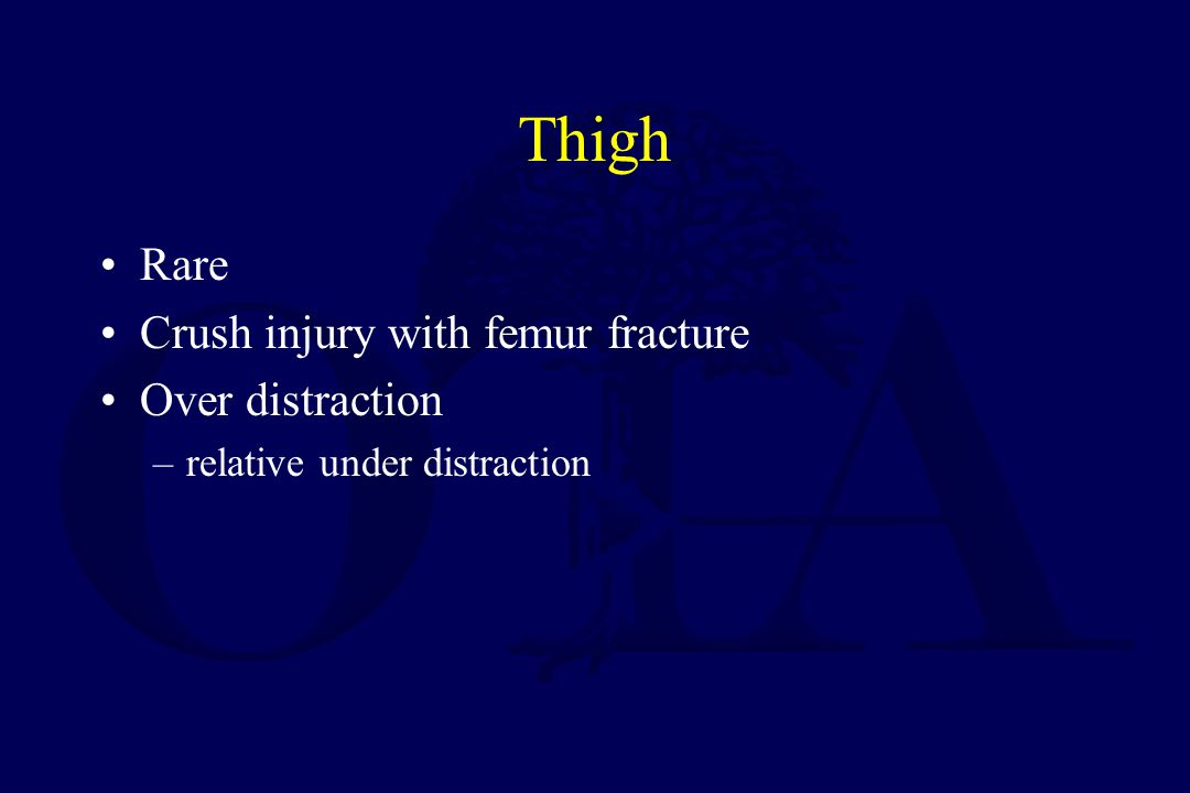 Thigh Rare Crush injury with femur fracture Over distraction