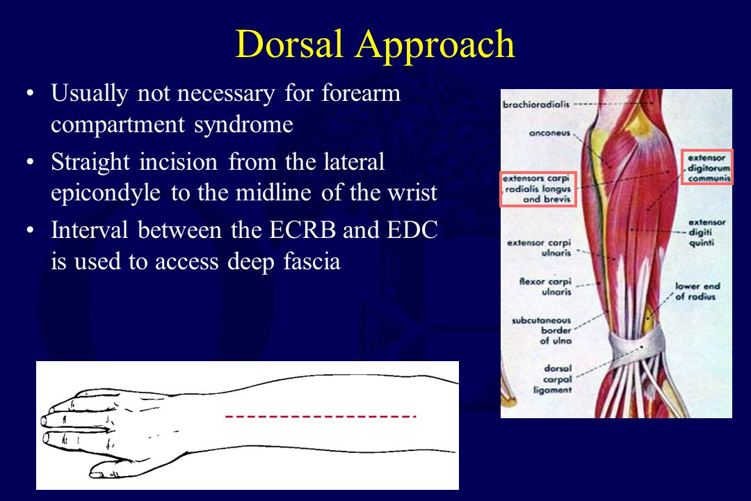Dorsal Approach Usually not necessary for forearm compartment syndrome