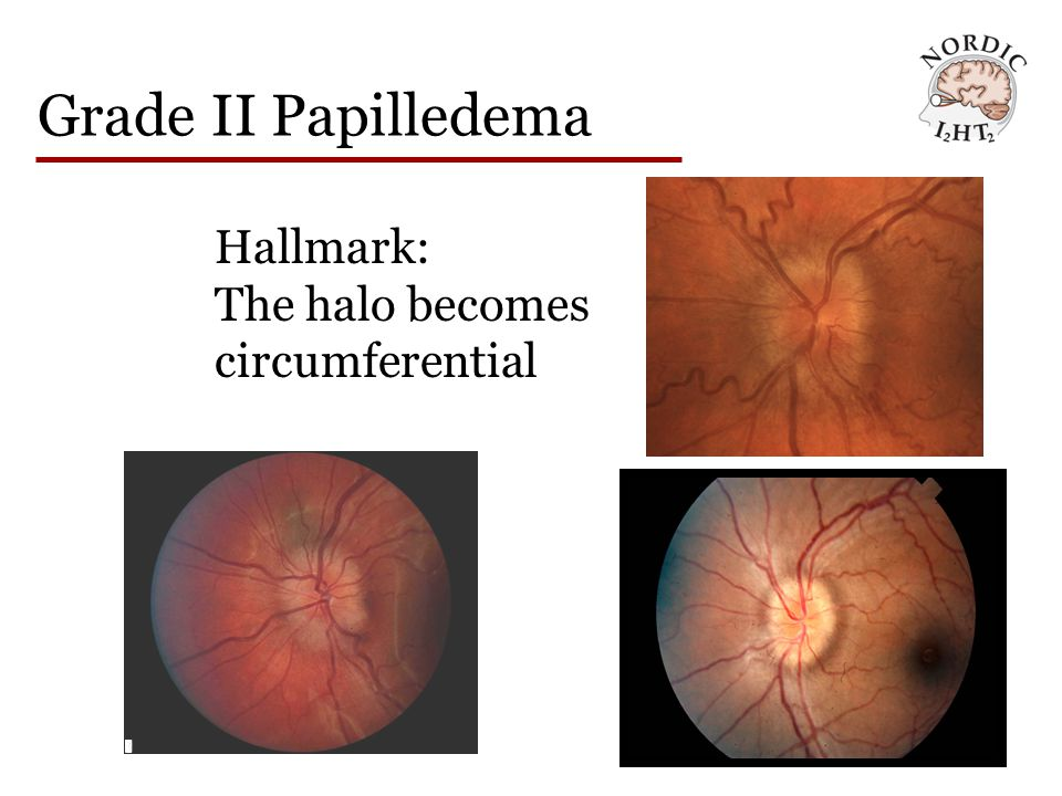 Grade II Papilledema Hallmark: The halo becomes circumferential