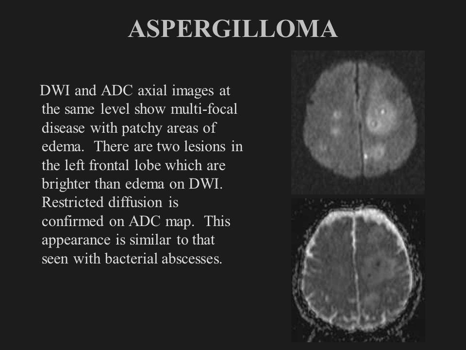 ASPERGILLOMA
