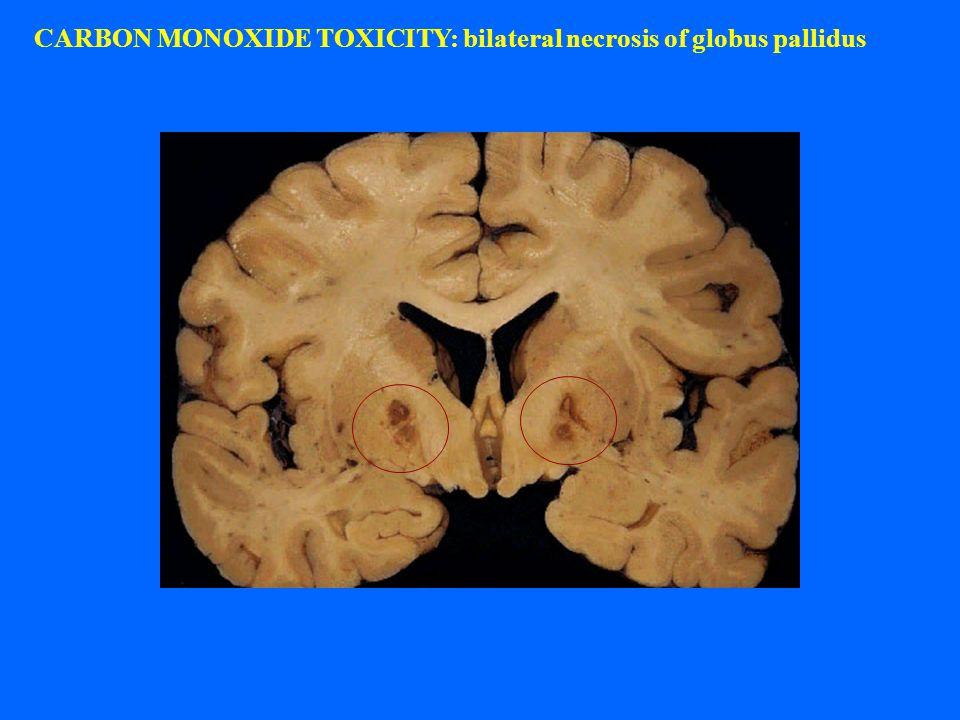 CARBON MONOXIDE TOXICITY: bilateral necrosis of globus pallidus
