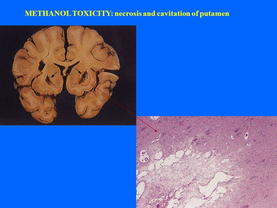 METHANOL TOXICITY: necrosis and cavitation of putamen