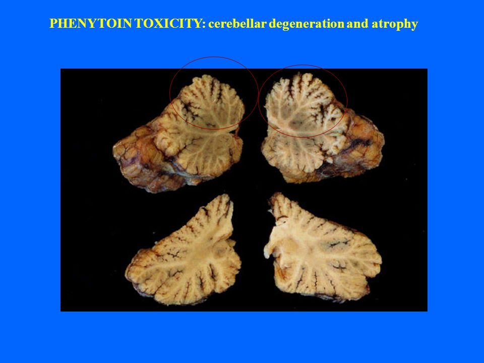 PHENYTOIN TOXICITY: cerebellar degeneration and atrophy