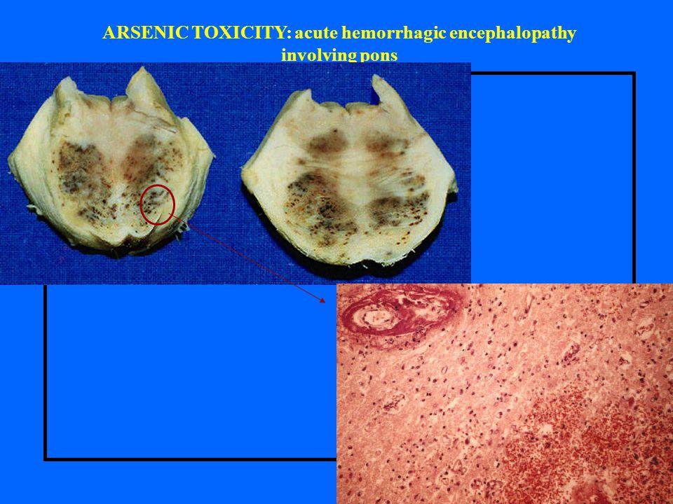 ARSENIC TOXICITY: acute hemorrhagic encephalopathy involving pons