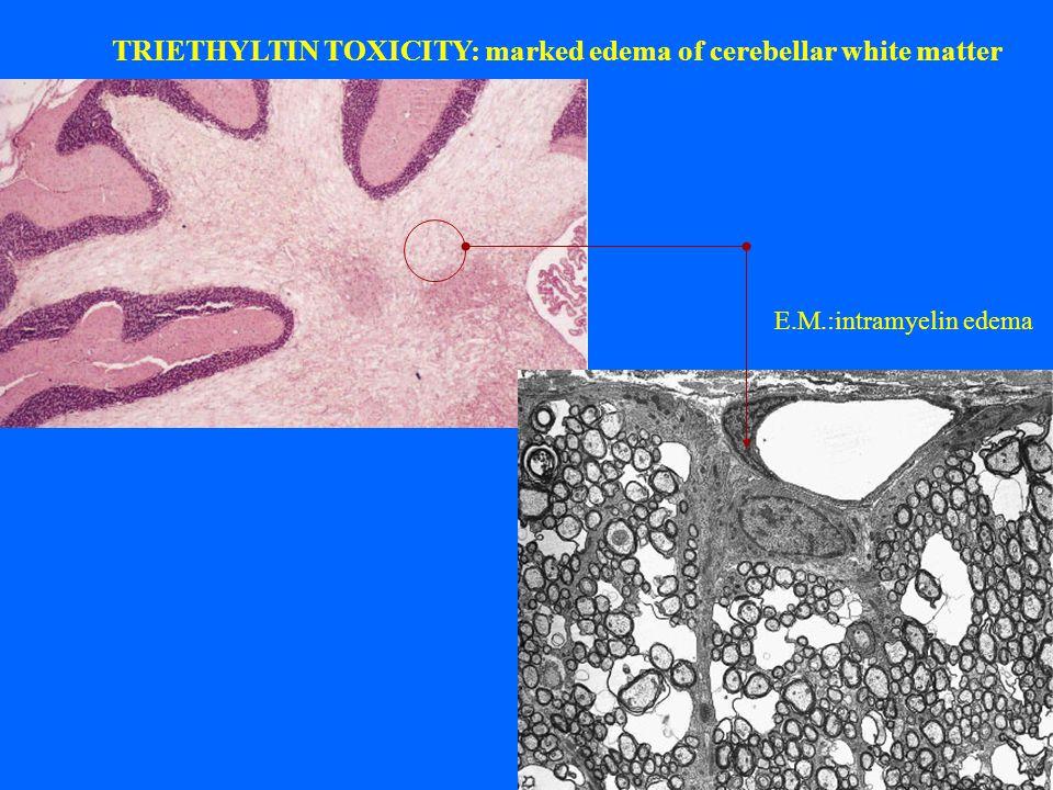 TRIETHYLTIN TOXICITY: marked edema of cerebellar white matter