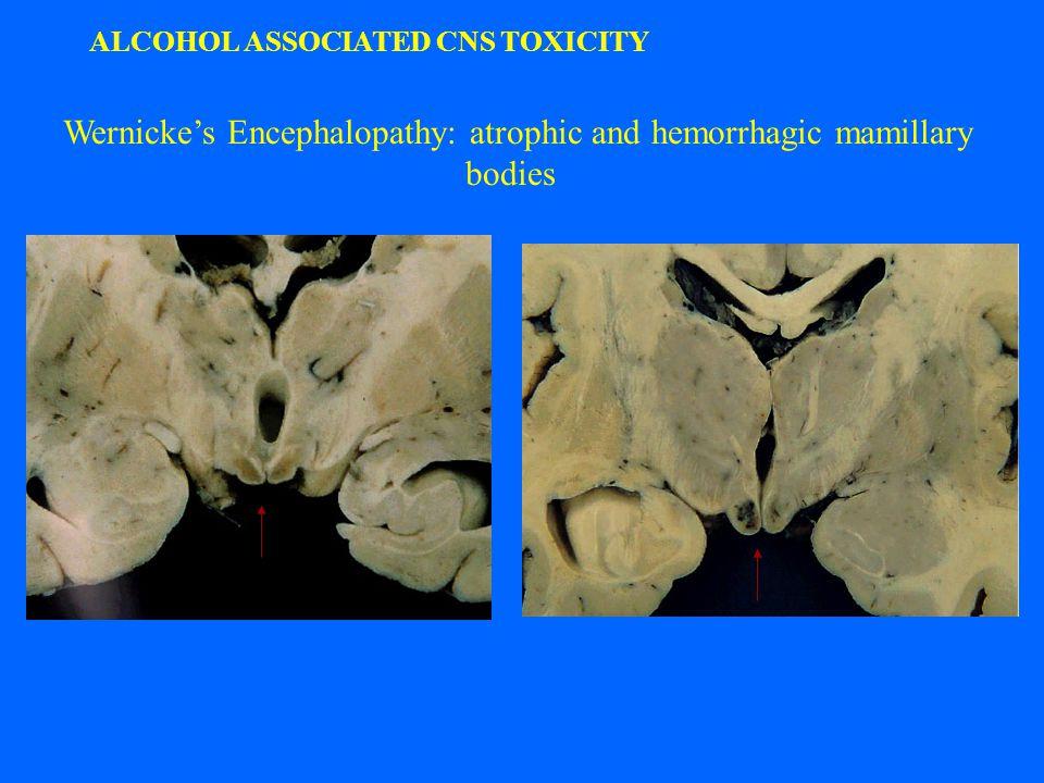 Wernicke's Encephalopathy: atrophic and hemorrhagic mamillary bodies