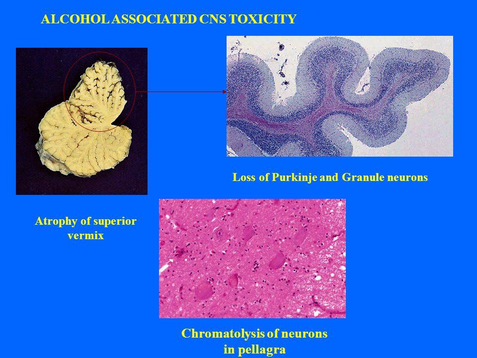 Chromatolysis of neurons in pellagra