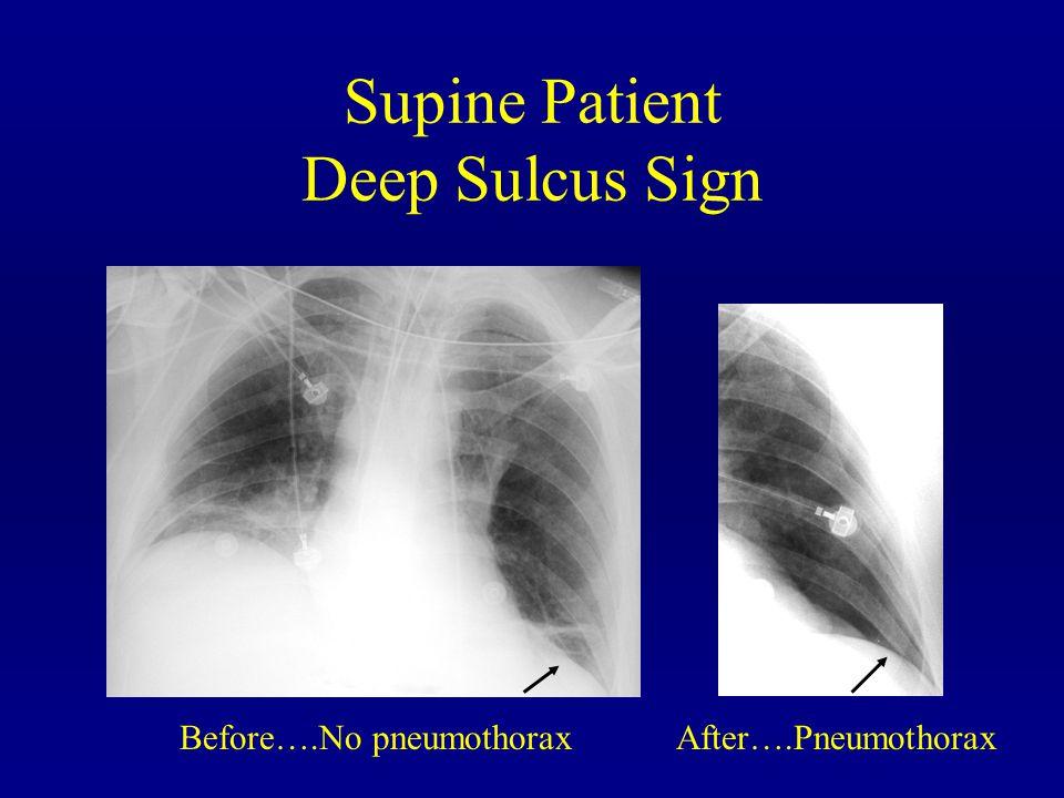 Supine Patient Deep Sulcus Sign