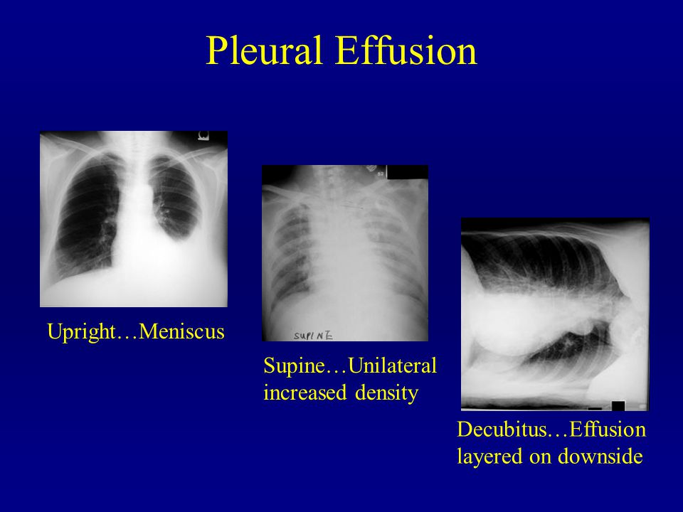 Pleural Effusion Upright…Meniscus Supine…Unilateral increased density