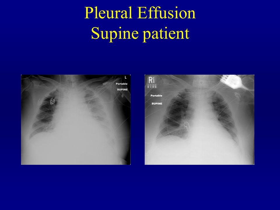 Pleural Effusion Supine patient