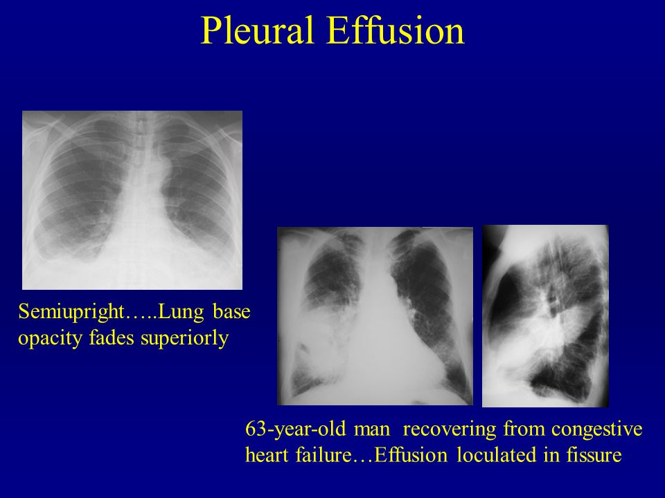 Pleural Effusion Semiupright…..Lung base opacity fades superiorly