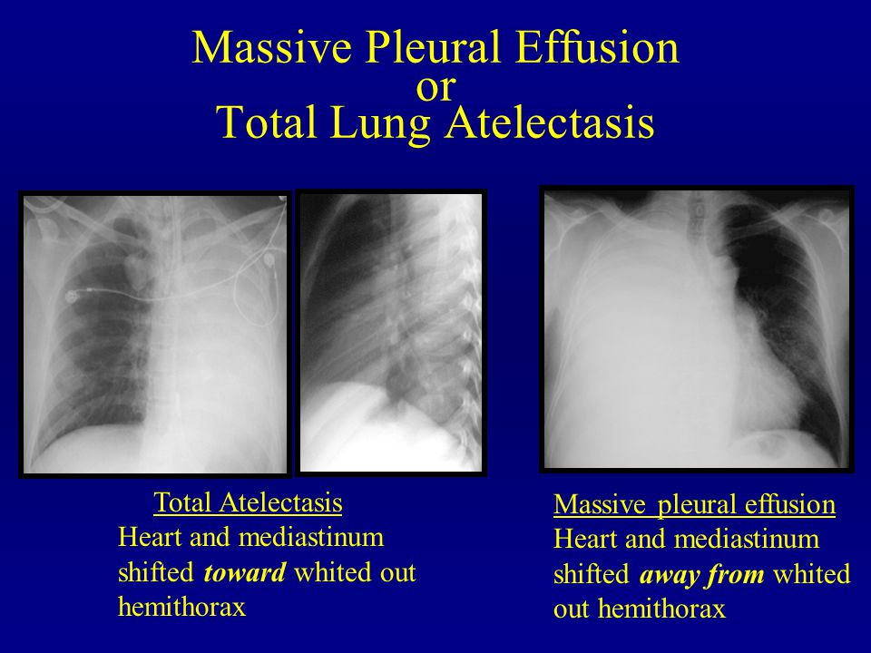 Massive Pleural Effusion or Total Lung Atelectasis
