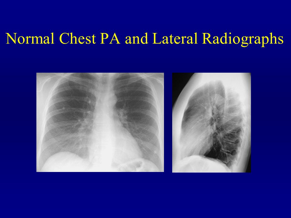Normal Chest PA and Lateral Radiographs