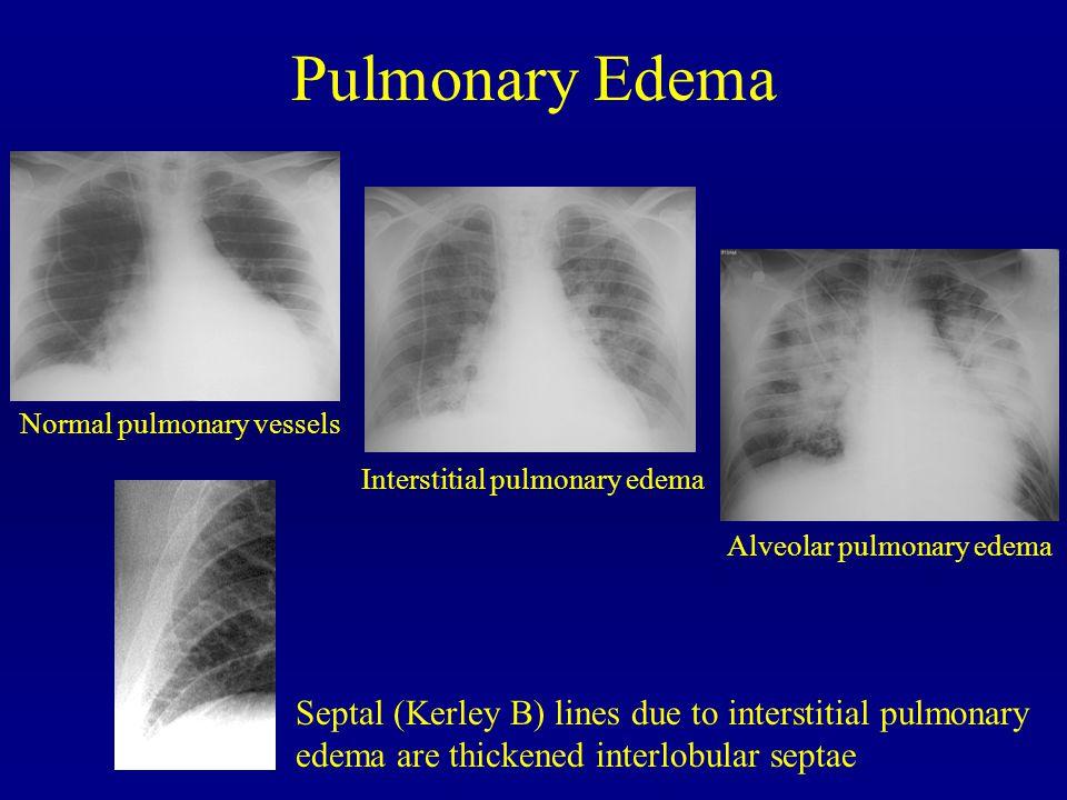 Pulmonary Edema Normal pulmonary vessels. Interstitial pulmonary edema. Alveolar pulmonary edema.
