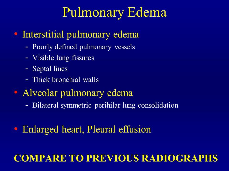 Pulmonary Edema Interstitial pulmonary edema Alveolar pulmonary edema