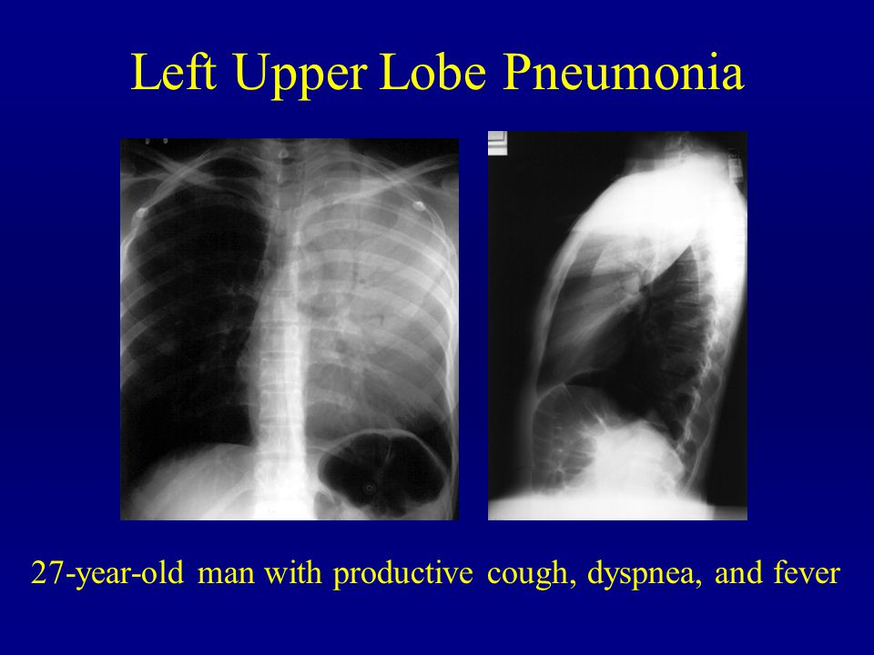 Left Upper Lobe Pneumonia