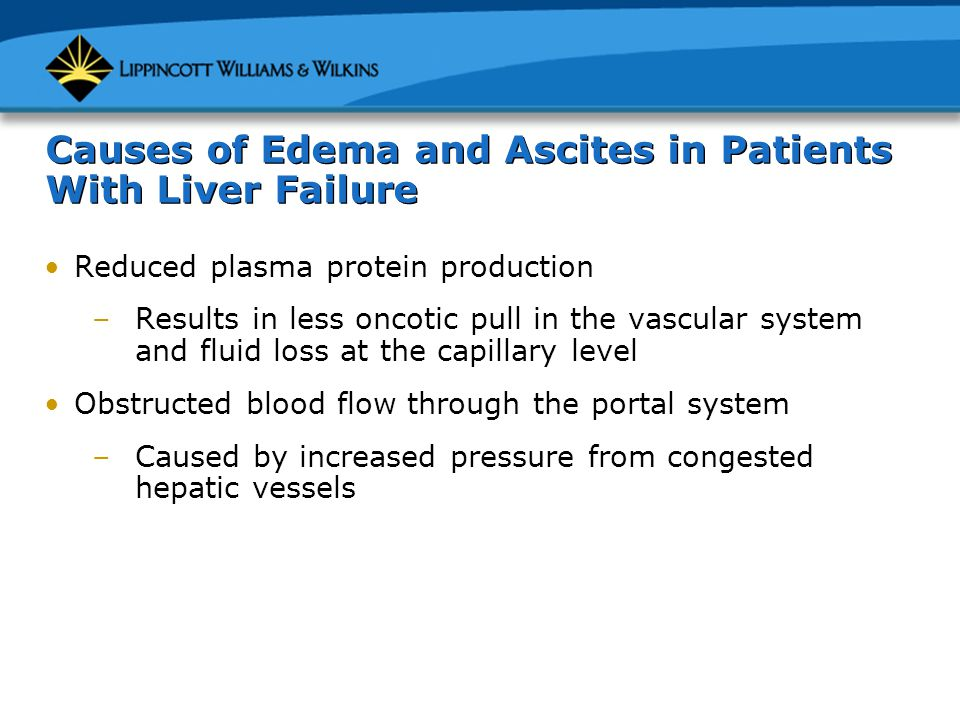 Causes of Edema and Ascites in Patients With Liver Failure