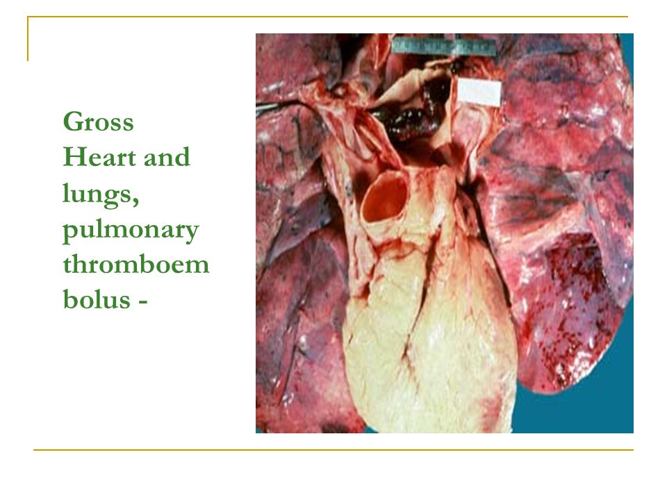 Gross Heart and lungs, pulmonary thromboembolus -