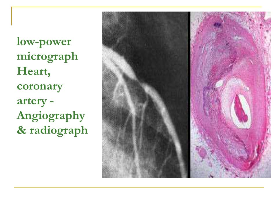 low-power micrograph Heart, coronary artery - Angiography & radiograph