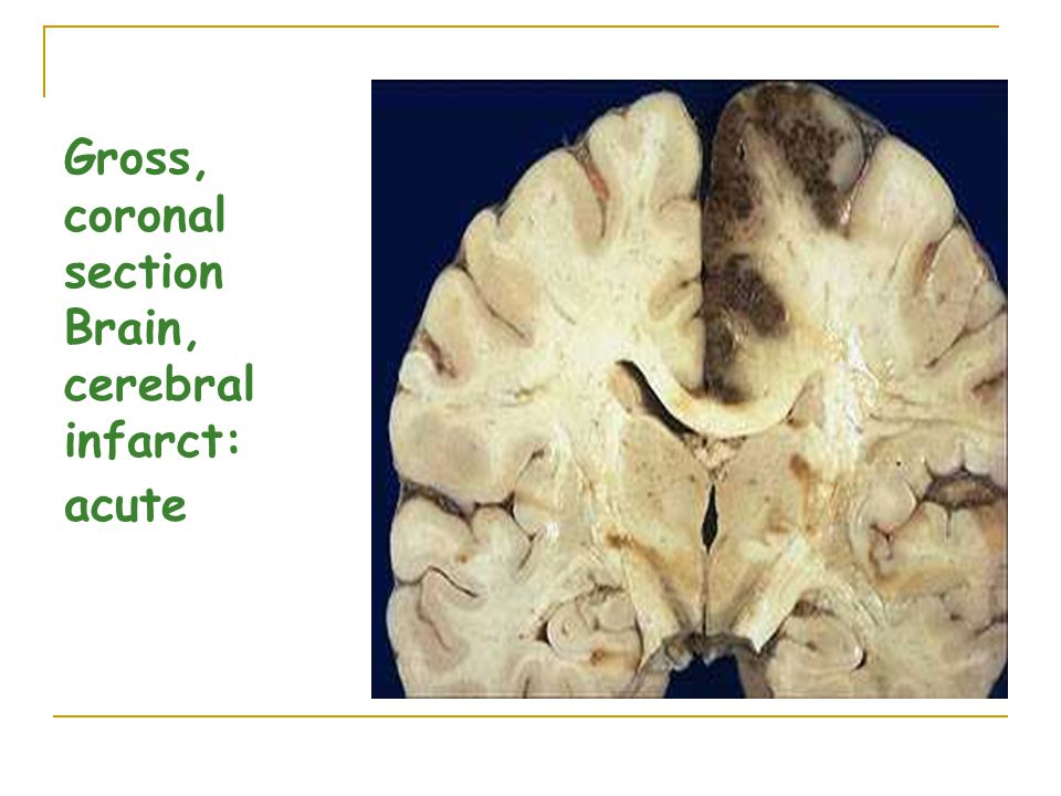 Gross, coronal section Brain, cerebral infarct: acute