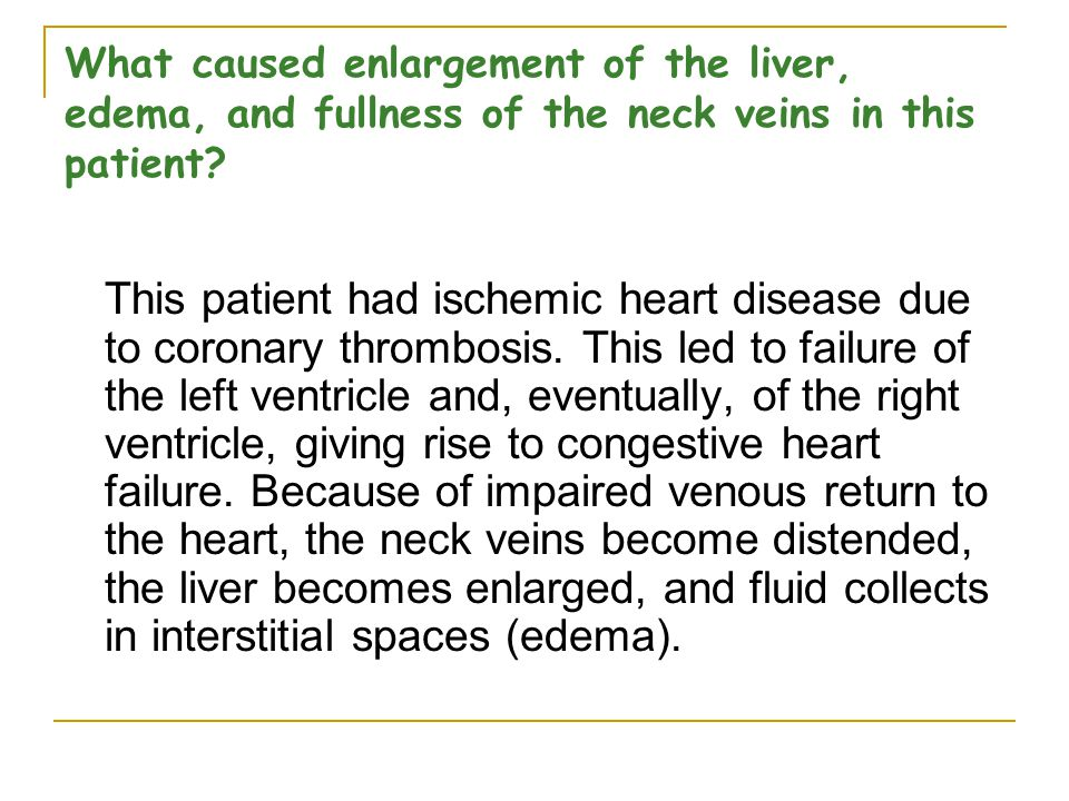 What caused enlargement of the liver, edema, and fullness of the neck veins in this patient