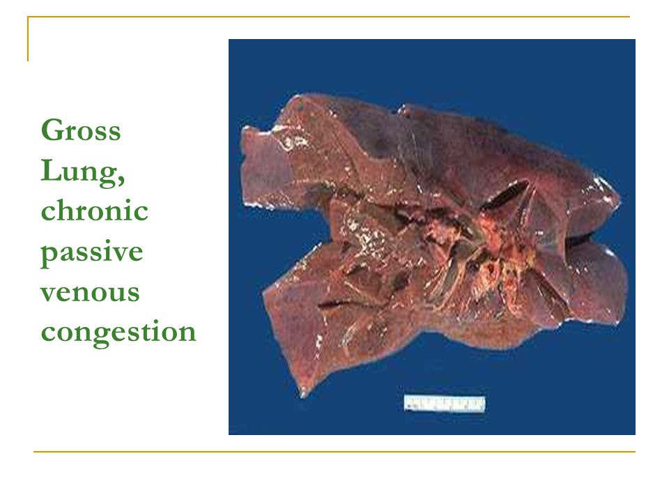 Gross Lung, chronic passive venous congestion