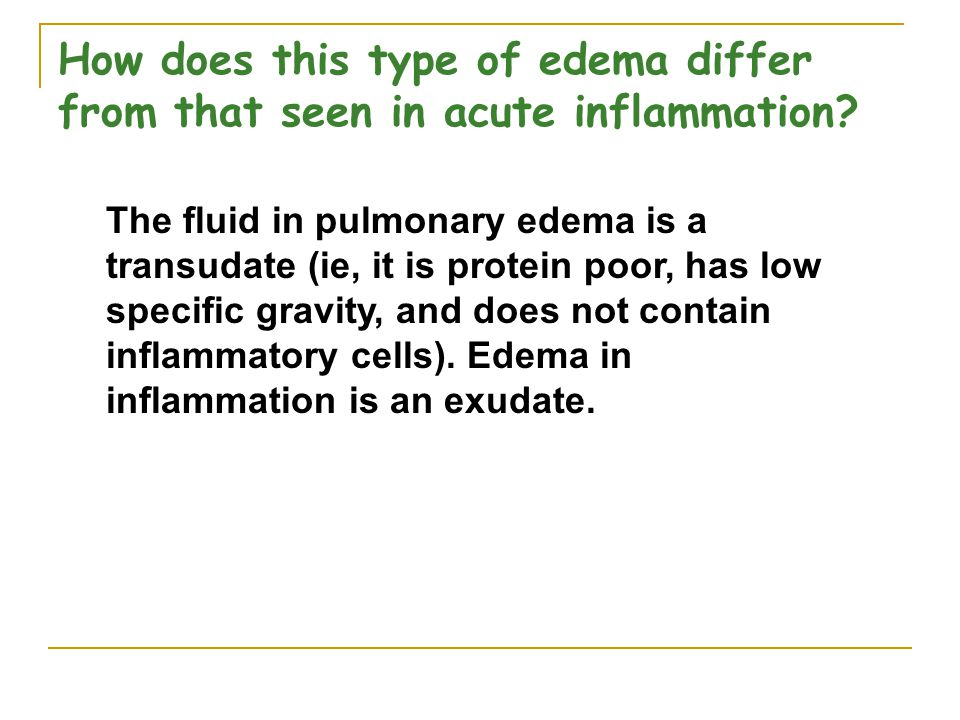 How does this type of edema differ from that seen in acute inflammation