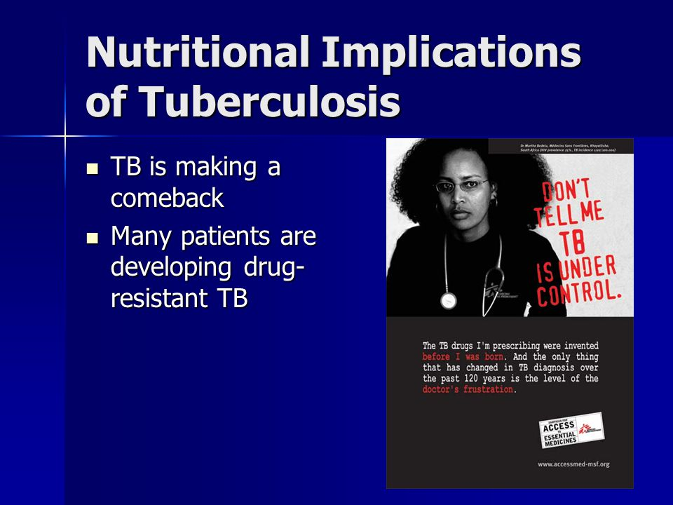 Nutritional Implications of Tuberculosis