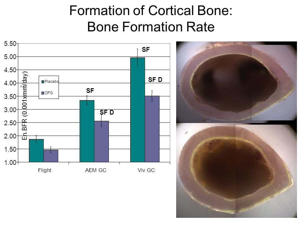 Formation of Cortical Bone: Bone Formation Rate