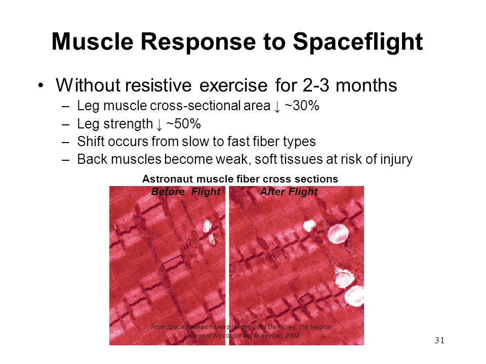 Muscle Response to Spaceflight