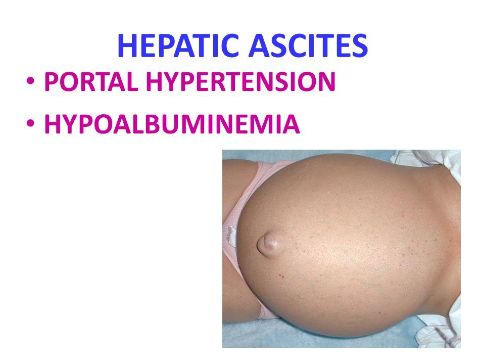 HEPATIC ASCITES PORTAL HYPERTENSION HYPOALBUMINEMIA