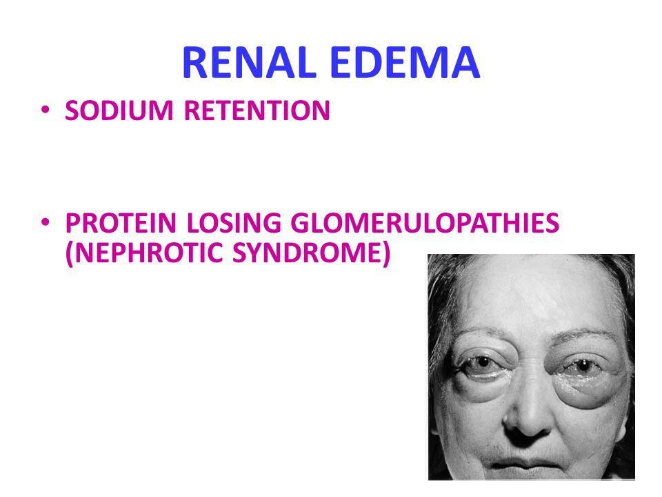 RENAL EDEMA SODIUM RETENTION