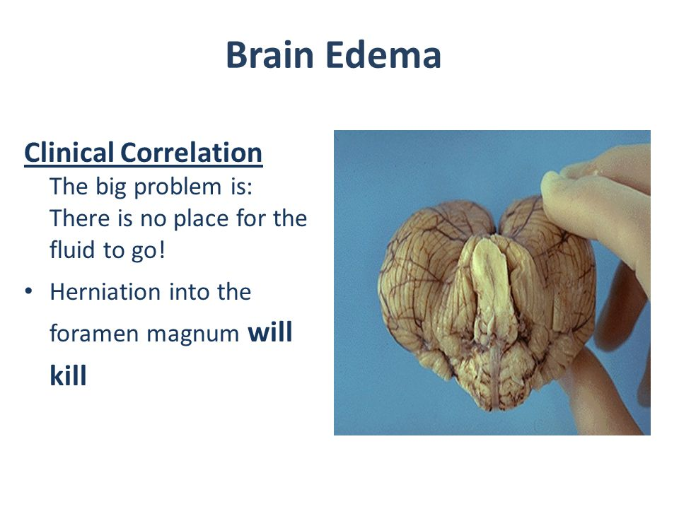 Brain Edema Clinical Correlation The big problem is: There is no place for the fluid to go! Herniation into the foramen magnum will kill.