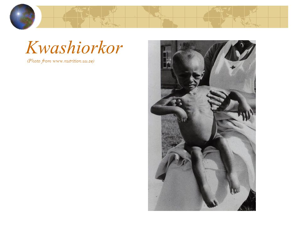 Kwashiorkor (Photo from www.nutrition.uu.se)
