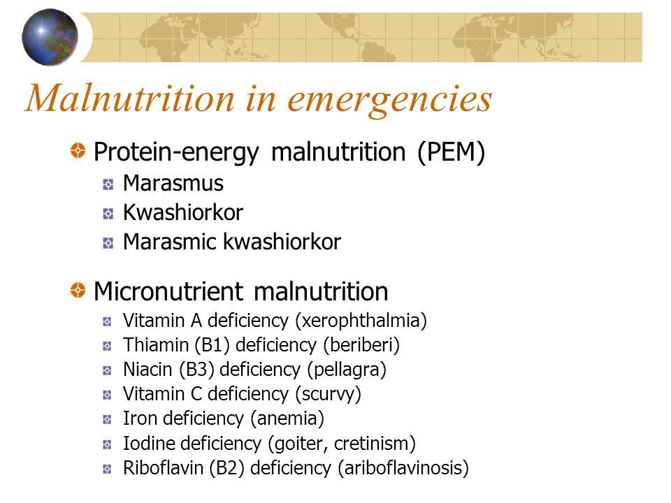 Malnutrition in emergencies