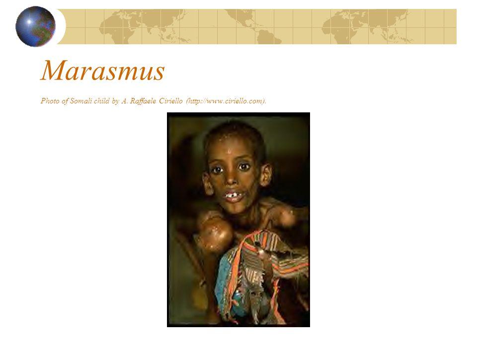 Marasmus Photo of Somali child by A. Raffaele Ciriello (http://www